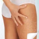 Anti-cellulite Kuur