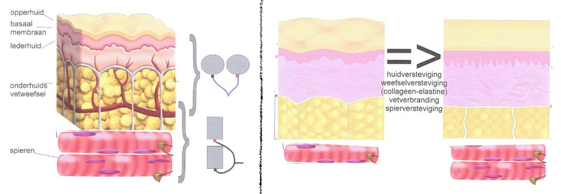 interslim - spierstimulatie - elektrotherapie